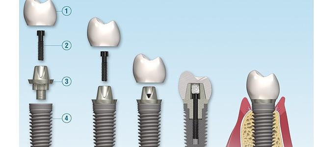 Diş İmplant Çeşitleri