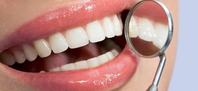 Porselen Lamine Diş Yaptırmanın Avantajları