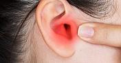 Orta kulak iltihabının altında beslenme hatası olabilir