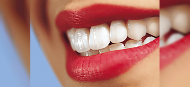 Lamine Diş Fiyatları ve Yapımı Nasıldır?
