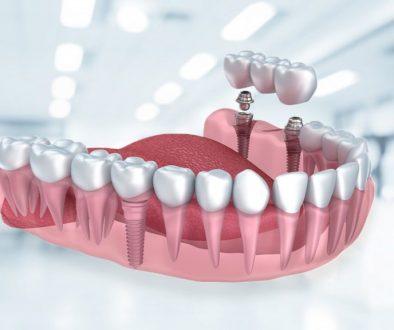 Diş Hastanesi Diş Beyazlatma Hizmeti